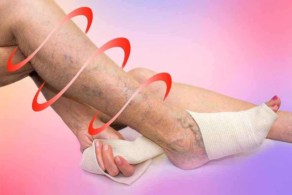Kompressionsstrümpfe verbessern die Durchblutung und helfen die Beschwerden bei Krampfadern zu lindern